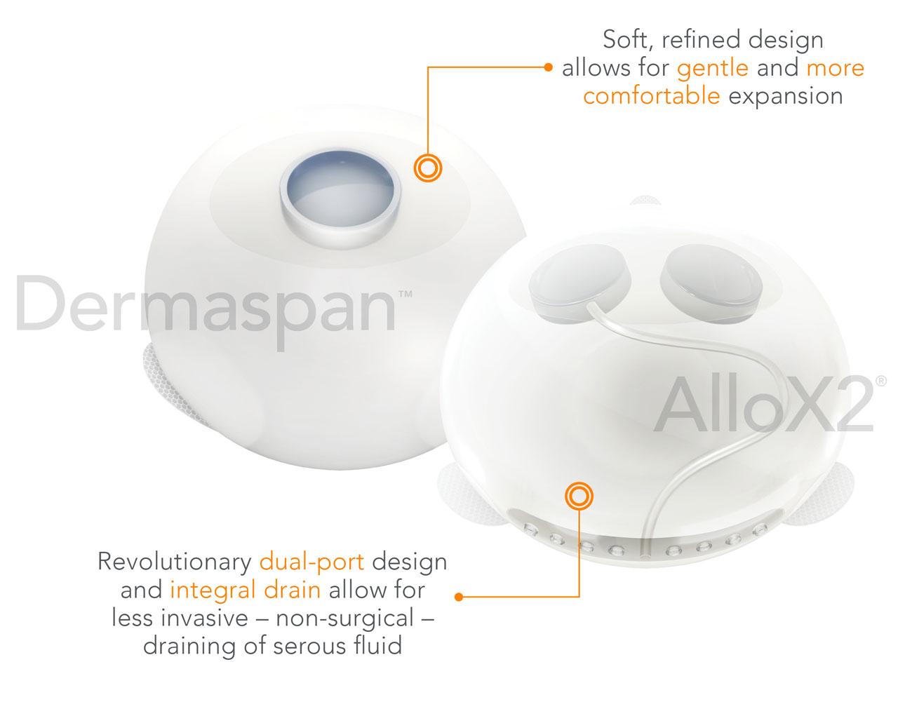 implant-expander-diagram_02