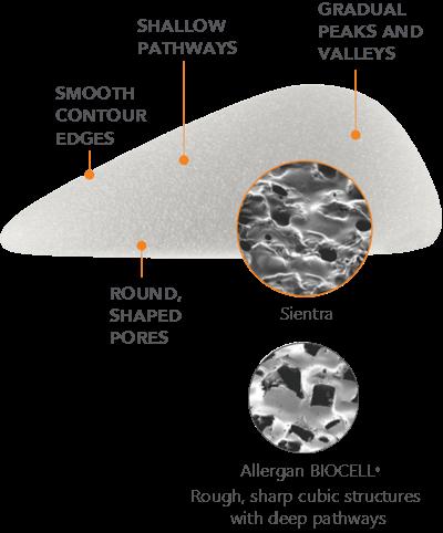 Textured Diagram