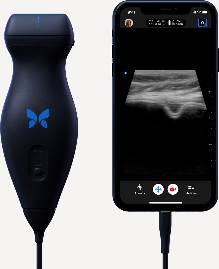 Butterfly device beside smart phone showing imaging